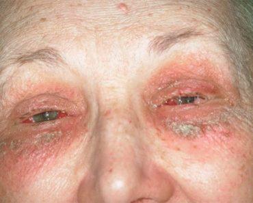 La kérato-conjonctivite éczemateuse