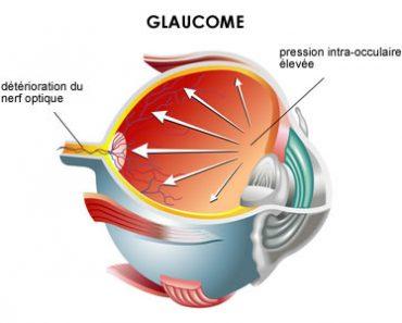Le glaucome