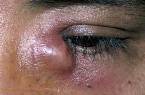Sac lacrymal infecté