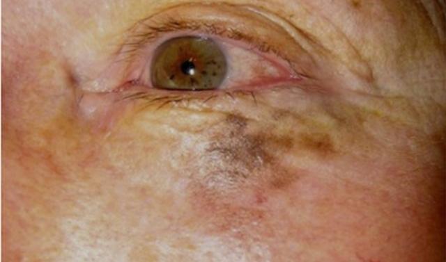 Kriodestrouktsiya des taches de pigment sur la personne