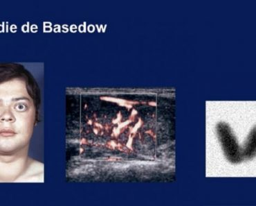Maladie de Basedow