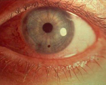 Sidérose oculaire
