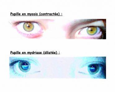 La contraction de la pupille
