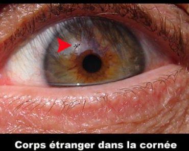 Un corps étranger dans l'oeil
