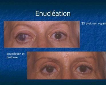 Énucléation de l'œil