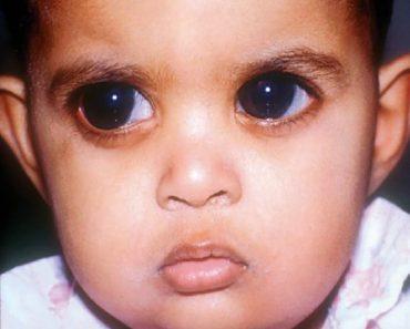 Le glaucome infantile