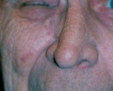 L'hémispasme facial