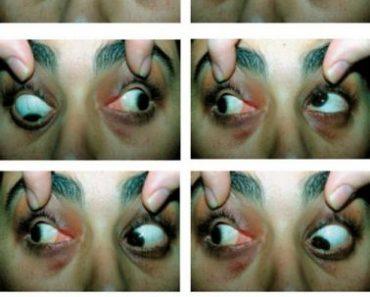 La paralysie du regard