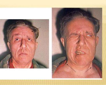 La paralysie faciale centrale