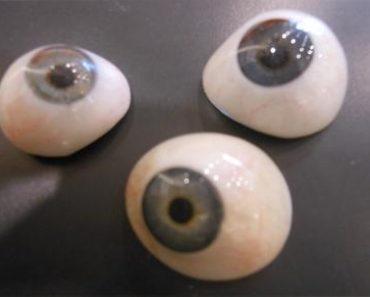 Le prothèse oculaire