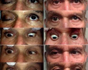 Syndrome de l'apex