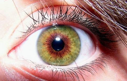 L'hétérochromie de l'iris