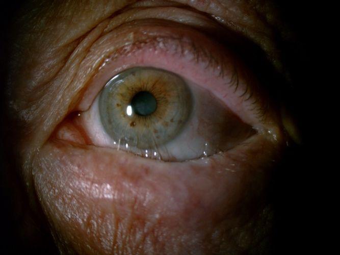 Les lésions de la cornée