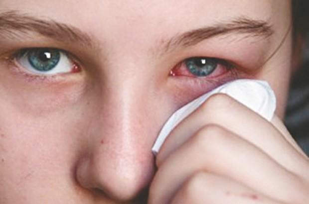 Une affection ophtalmologique