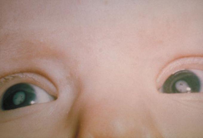Le cataracte infantile