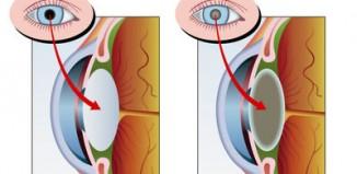 Le cristallin cataracté
