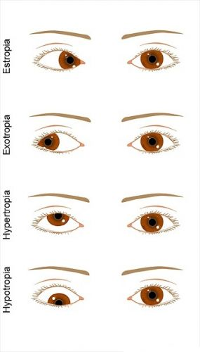 les paralysies oculaires de la syphilis c r brale ophtalmologie. Black Bedroom Furniture Sets. Home Design Ideas