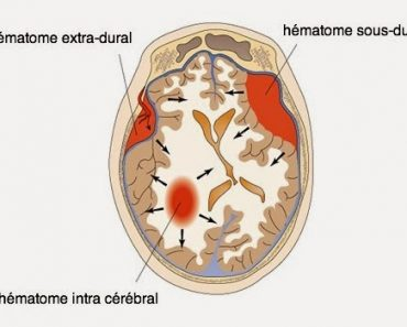 Hématome extra et sous dural