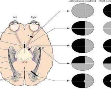 L'hémianopsie