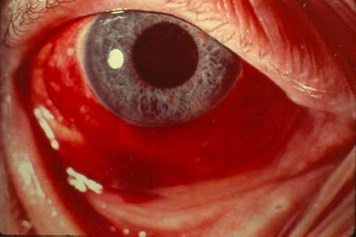 Les hémorragies oculaires