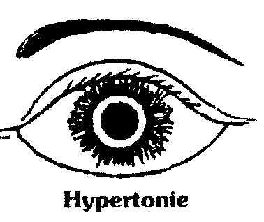 L'hypertonie oculaire