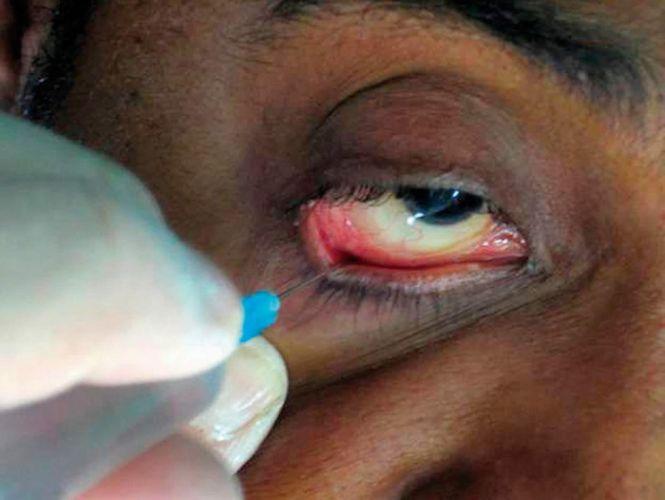 Les injections sous-conjonctivales