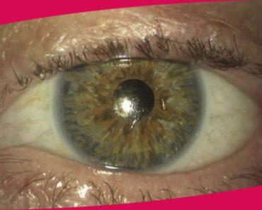 La tuberculose oculaire