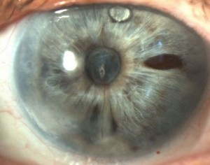 La séclusion pupillaire