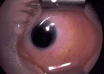 Sémiologie de la pupille