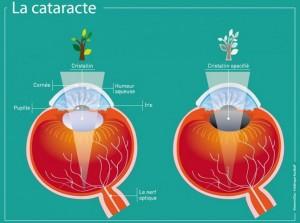 La cataracte congénitale