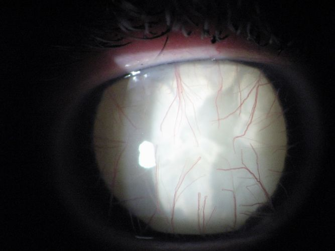 La cataracte totale
