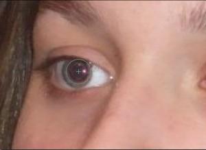 Le champ rouge de la pupille