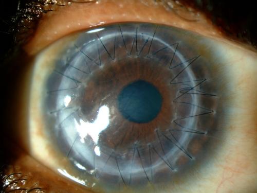 La cornée œdemateuse