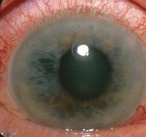 Crise de glaucome aigu
