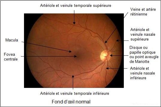 Fond œil normal