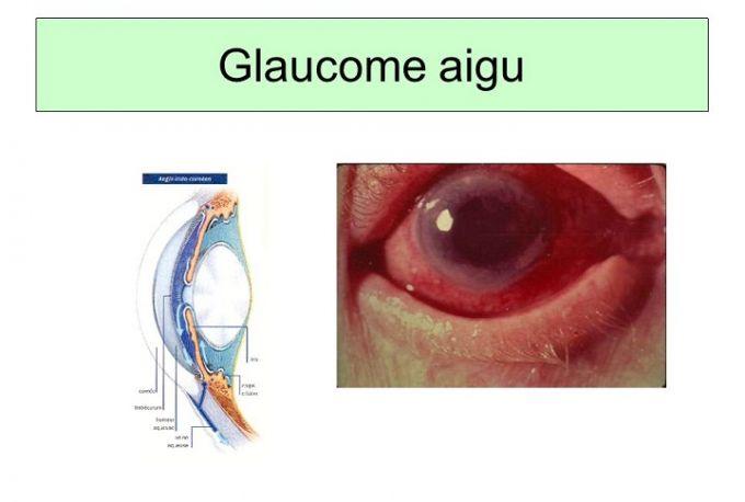 Un glaucome aigu