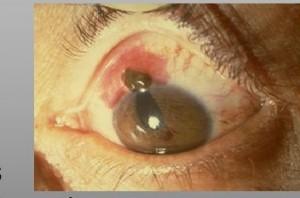 Une hernie de l'iris