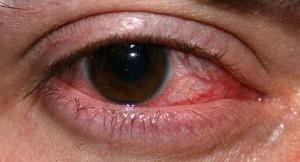 L' herpès de la cornée