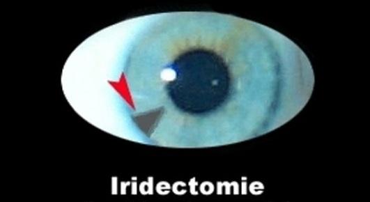 Iridectomie