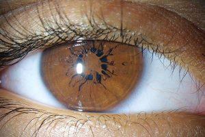La membrane pupillaire