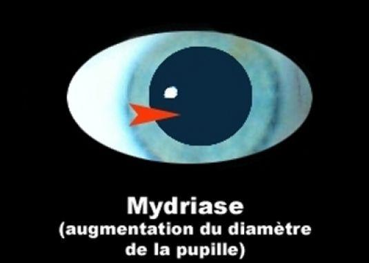 La mydriase
