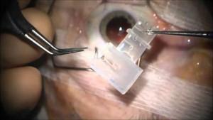 Opération de cataracte