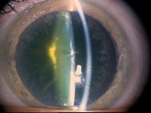 Cataracte diabétique
