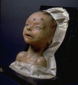 Syphilis congénitale