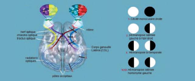 La cécité corticale
