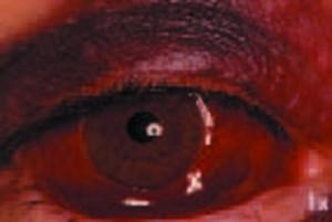 Contusion du globe oculaire