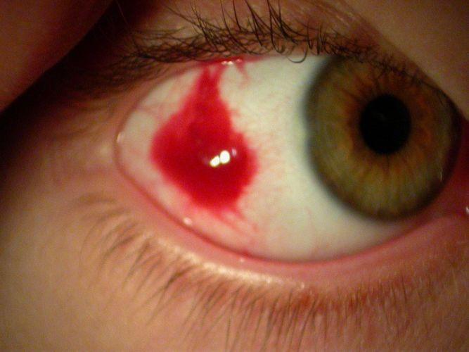 Cataractes traumatiques ophtalmologie - Couche du globe oculaire ...