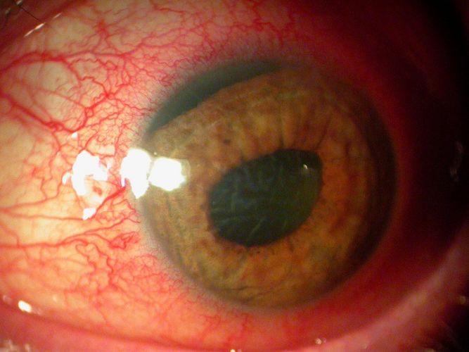 La contusion du globe oculaire