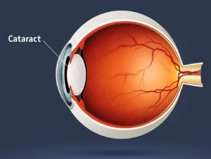 Cristallin cataracté