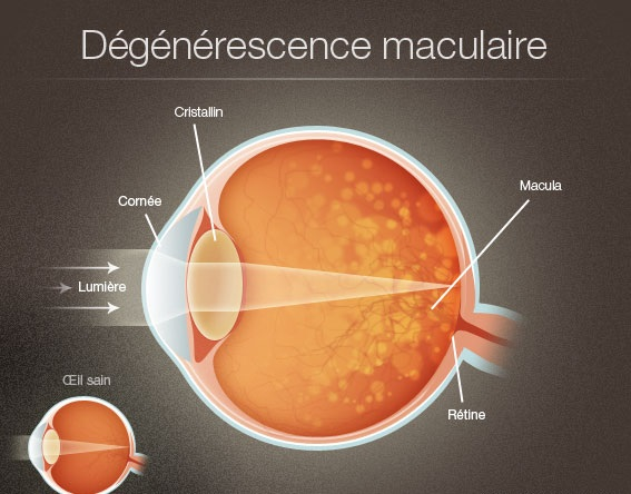 La dégénérescence maculaire
